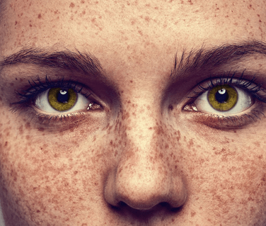 pigmentation 1