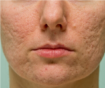 acne scarring 364