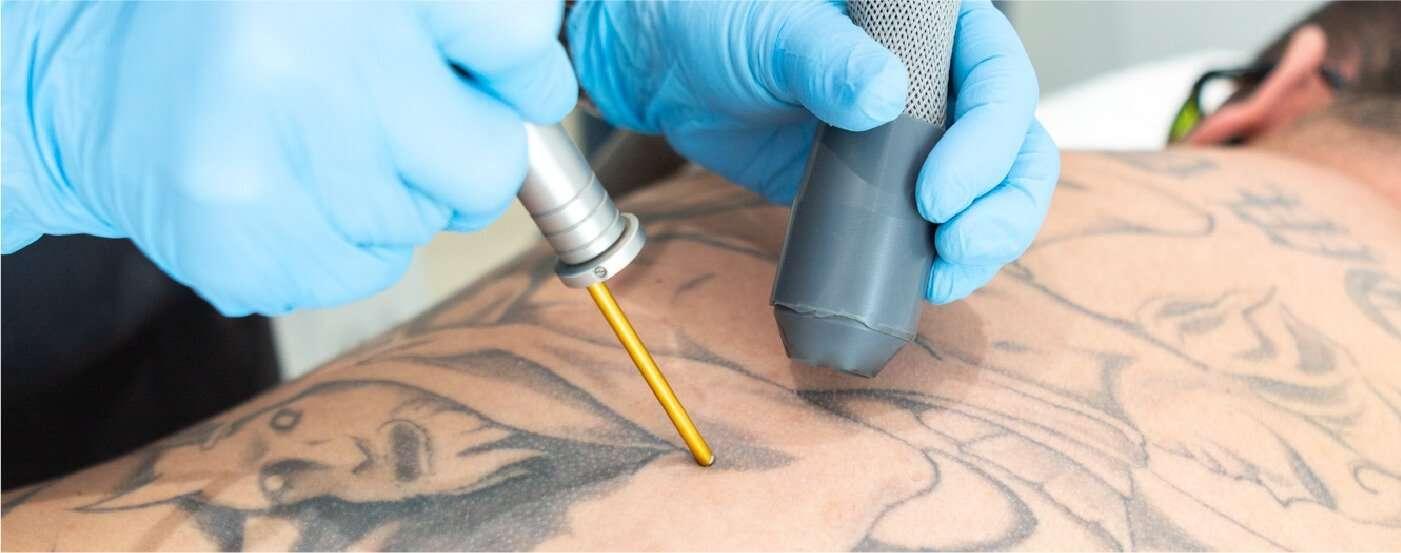 laser tattoo 01
