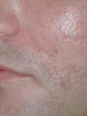skinresurfacing-after