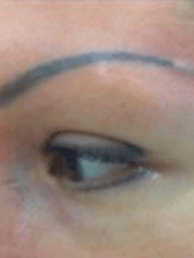 brow-removalbfore